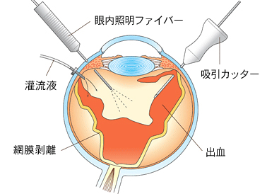 期間 入院 網膜 剥離
