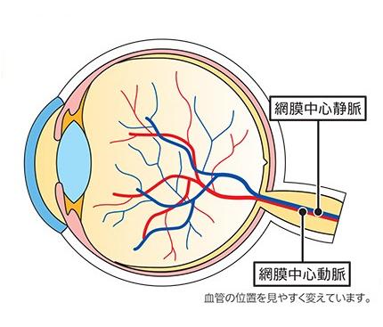 閉塞 静脈 症 中心 網膜