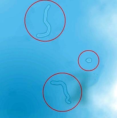「飛蚊症」の画像検索結果